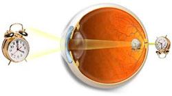 Hyperopia or Farsightedness