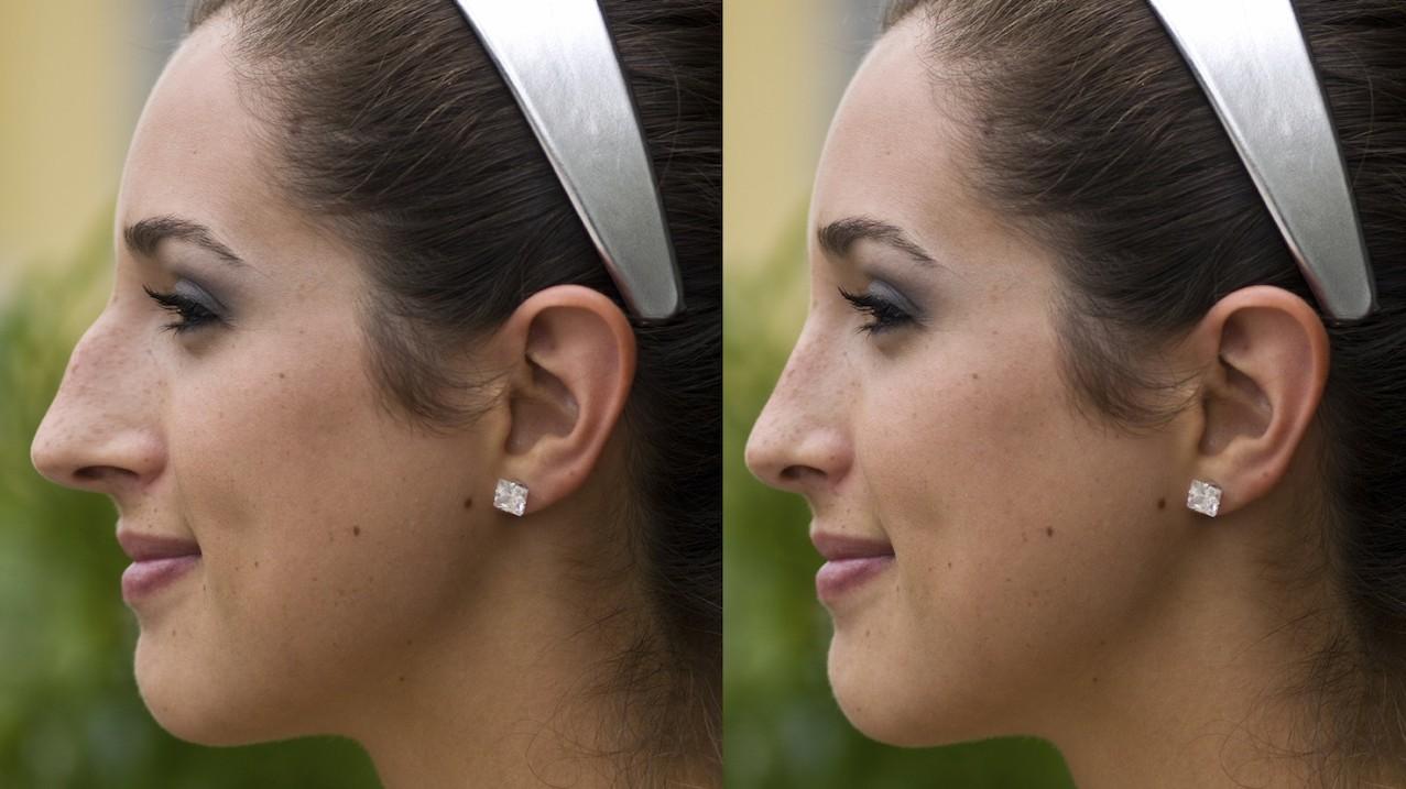 Nose surgery | Magrabi Hospitals