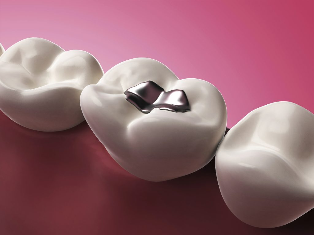 What is dental amalgam?