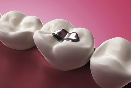 What is dental amalgam?