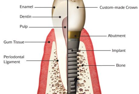 What is a dental implant ..?