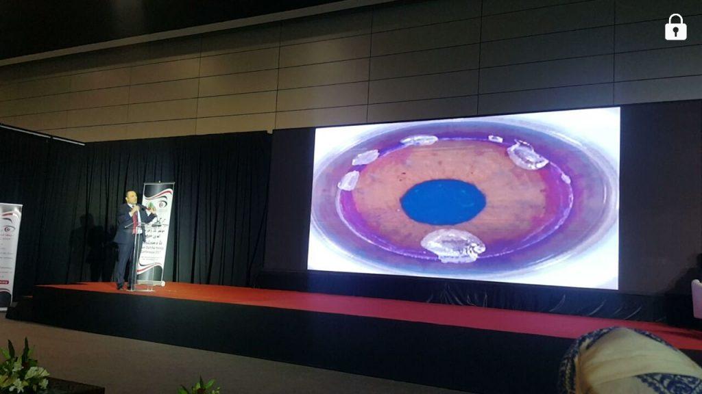 مؤتمر عُمان لطب العيون