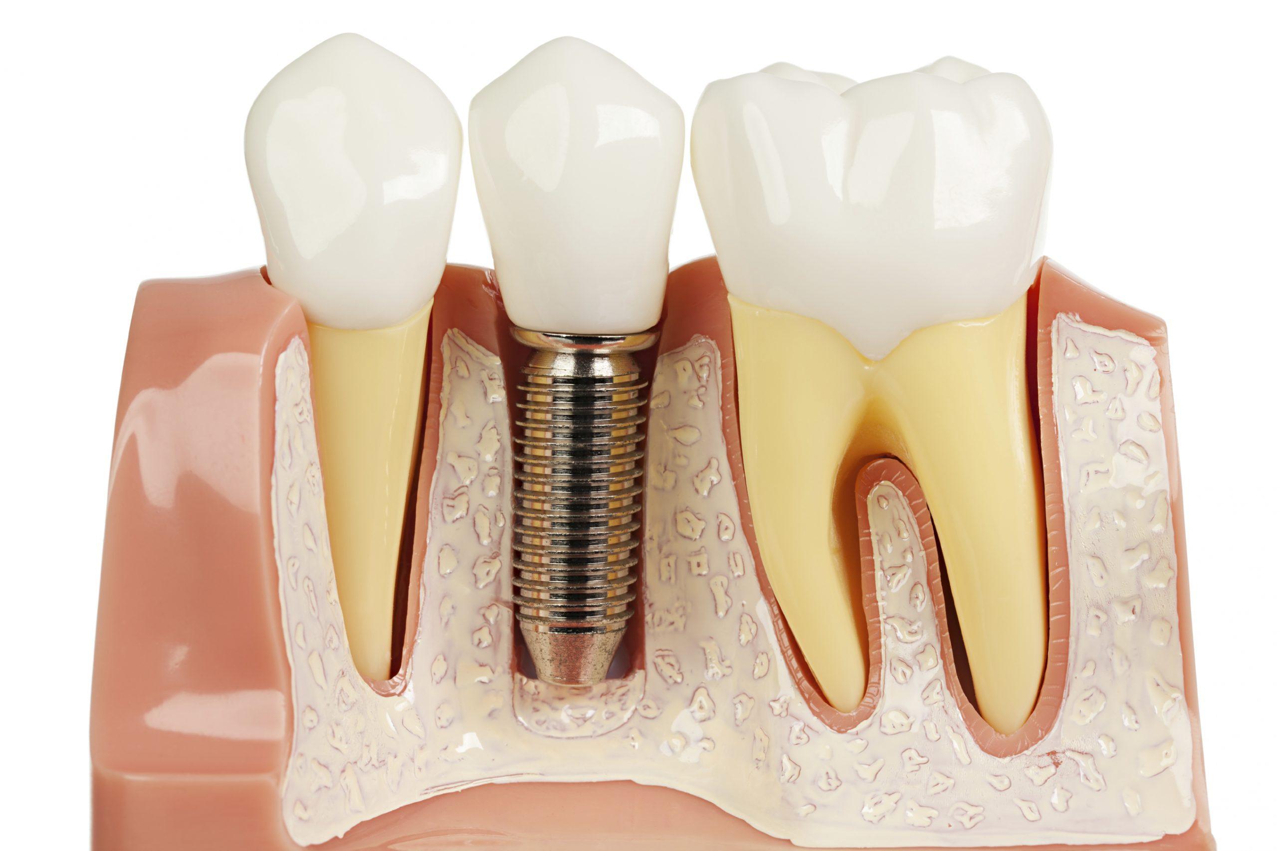 زراعة الأسنان التعريف الدواعي المميزات الانواع المخاطر