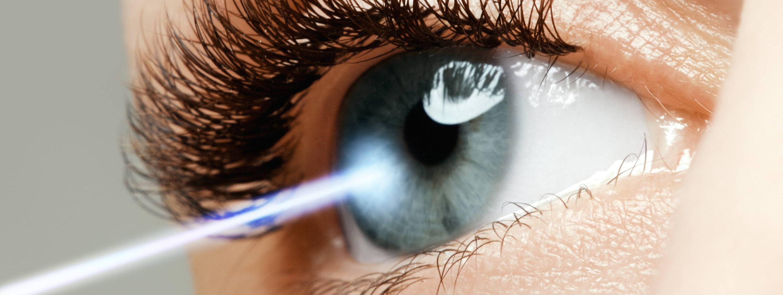 Femto cataract