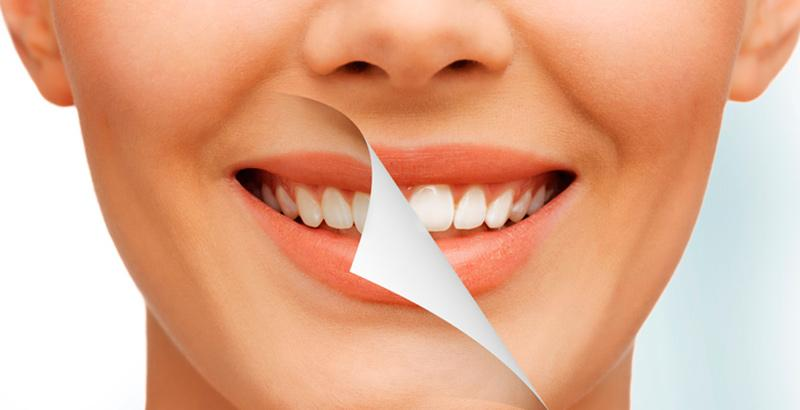 The magical ways to retrieve your bright smile again (Veneers)