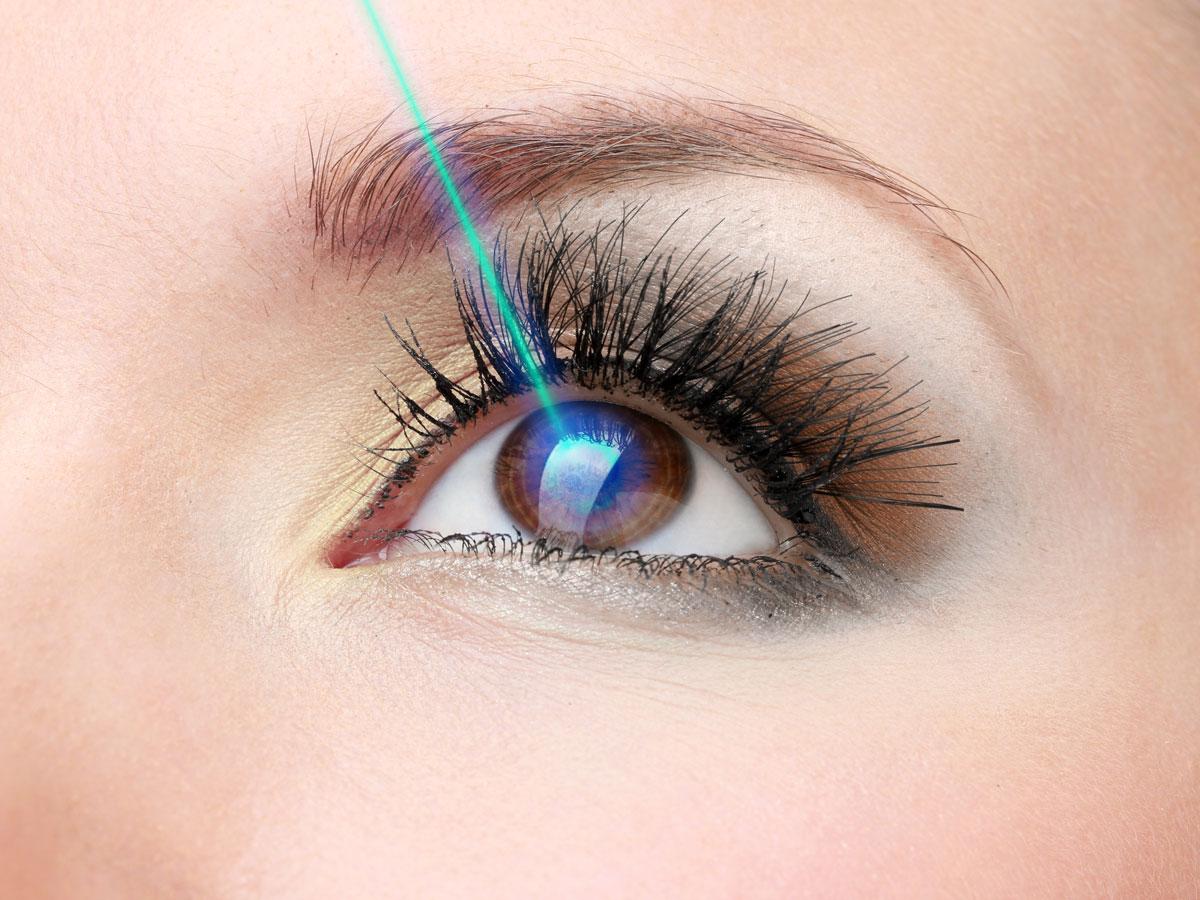 عملية الليزك السطحي للعين
