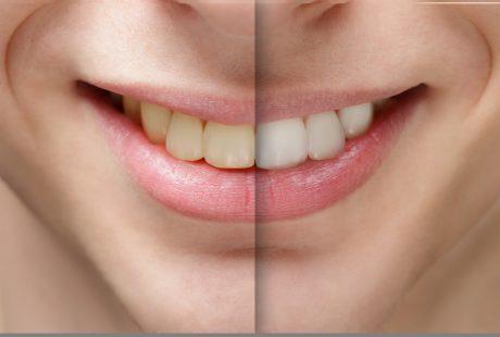 ابتسامة هوليود حل سريع لأسنان ناصعة البياض تدوم طويلاً وبدون آلام