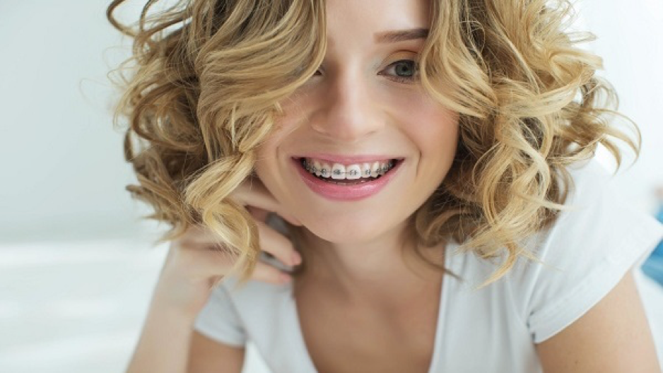 مدة تقويم الاسنان وأهميته