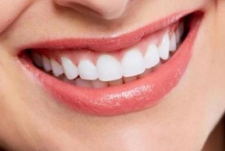 تلميع الأسنان الحل الأمثل لابتسامة مشرقة