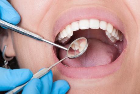 ما هي أسباب خلع الاسنان؟ ومتى يجب خلعها؟