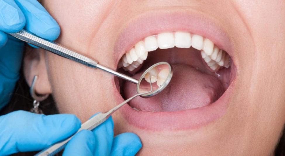 خلع الاسنان موضوع يؤرق الكثير منا لذلك يجب عليك المحافظة علي اسنانك