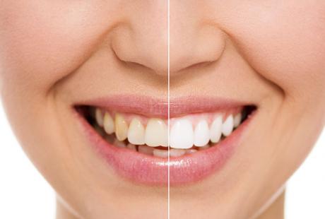 ما هي طرق علاج اصفرار الأسنان؟