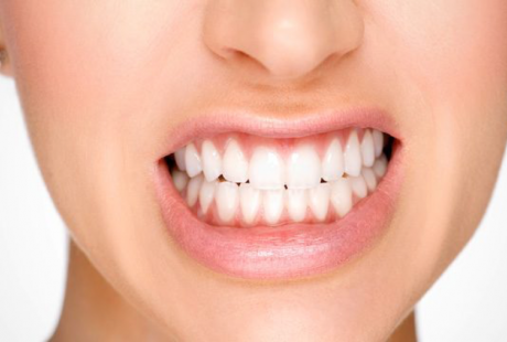 What are the causes of tooth grinding? and how to treat it?