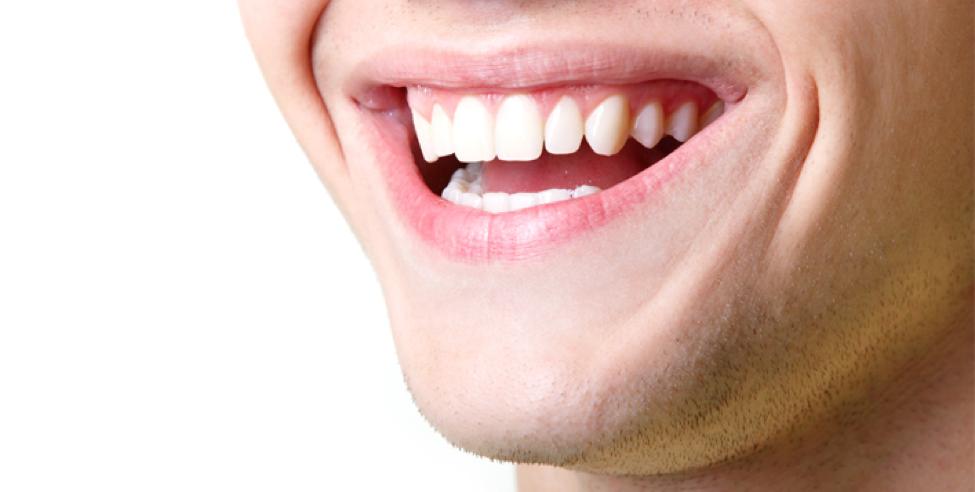 توريد اللثة مع تبييض الأسنان دليلك للحصول على ابتسامة متكاملة وجذابة