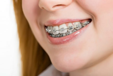 What are orthodontics? and what they do?