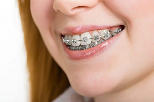 تقويم الاسنان لما له من فوائد كثيرة تساعدك علي استعادة ابتسامتك بطلاقة