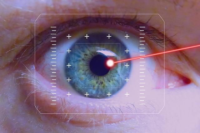 ما هي عملية الليزر السطحي للعين؟ وما هي مميزاتها؟
