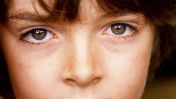 جفاف العين أسبابها وأفضل طرق علاجها