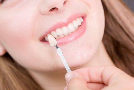 تعرف على أسباب احتياج الشخص لإصلاح أسنانك باستخدام قشرة الاسنان