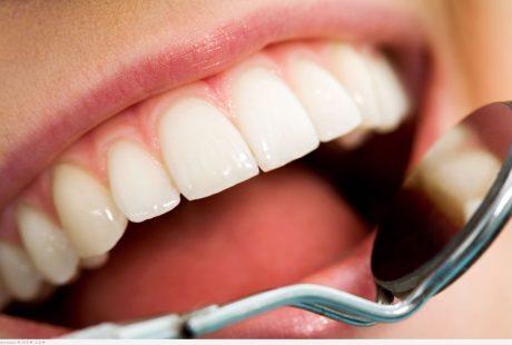 مالا تعرفه عن صور تسوس الاسنان المرعبة والاسباب المسببه له