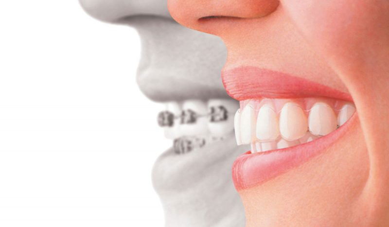 تقويم الاسنان الداخلي هو الحل للحد من الشكل غير المتناسق للأسنان