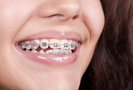أهمية تقويم الاسنان للكبار