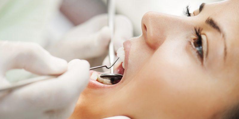 تعرف على مراحل تسوس الاسنان وطريقة العلاج وكيفية الوقاية منها