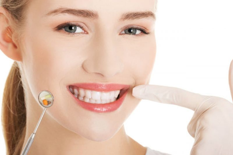 تعرف علي مراحل علاج جذور الاسنان وطرق التخلص منها