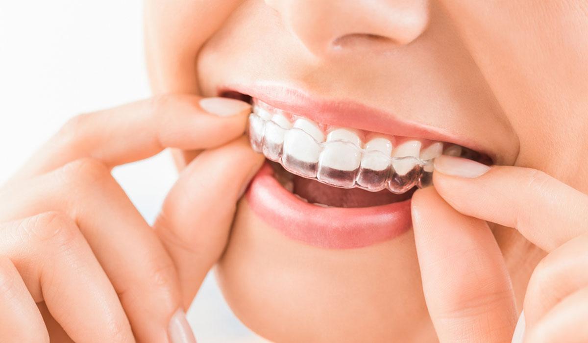 قوالب تبييض الاسنان تعرف على مميزاتها و عيوبها وطريقة استخدامها