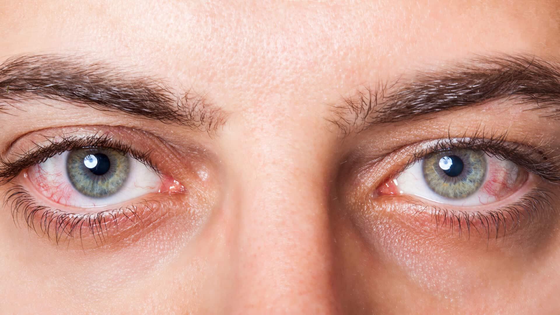 جفاف العين ٢