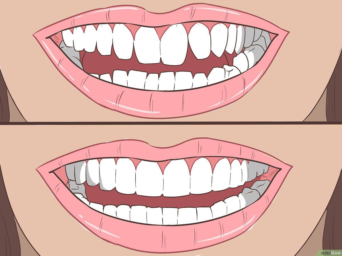 ماذا تعرف عن عملية تصغير الاسنان .. اقرأ التفاصيل