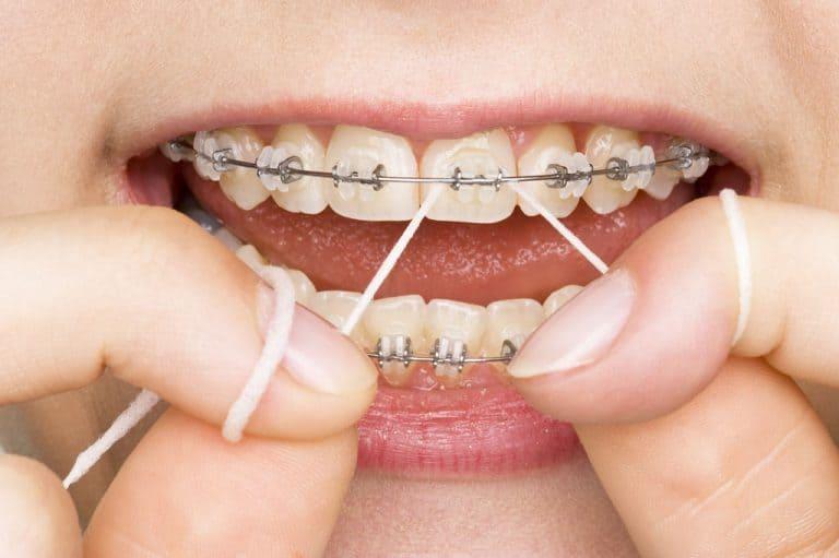 مدة تركيب التقويم بالأسنان تعرف على معايير تحديد مدة التقويم