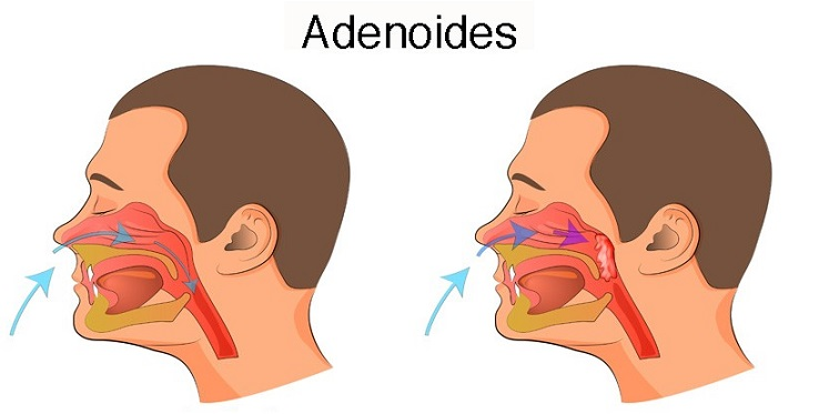 Adenoids in Adults
