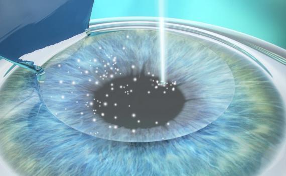 Femtolasik, the bladeless eye surgery