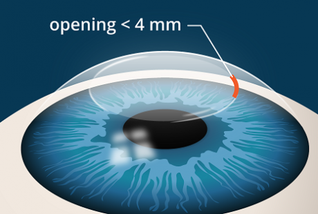 Femtosmile, the latest technology in eye surgery!