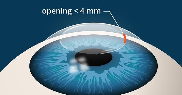 Femtosmile, the latest technology in eye surgery!