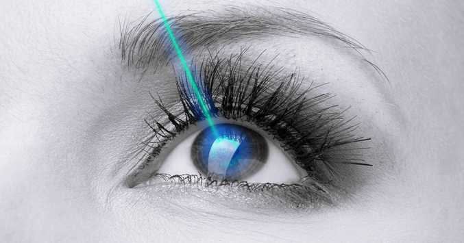 Lasik surgery, the past, present and future of eye surgery!