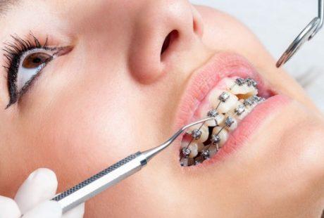 Orthodontics, Brace yourself!