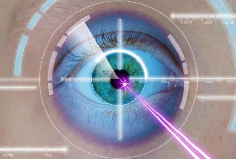 laser eye surgery, eye-innovate!