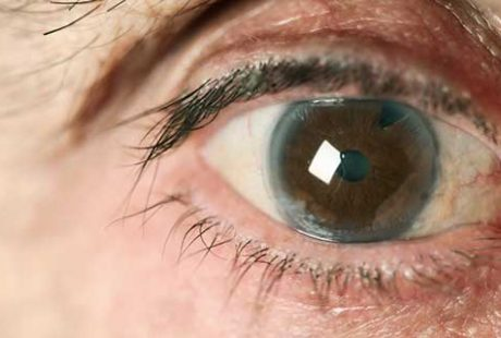 10 FAQ's about Cataract !!