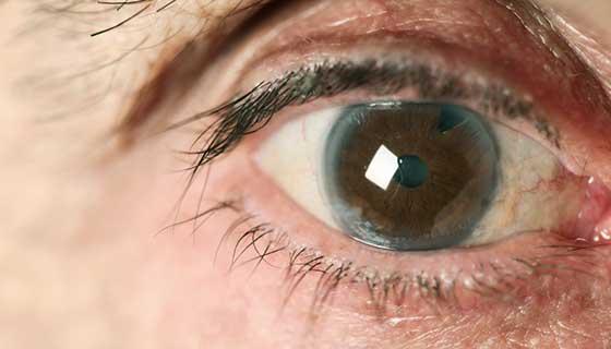 10 FAQ's about Cataract !!