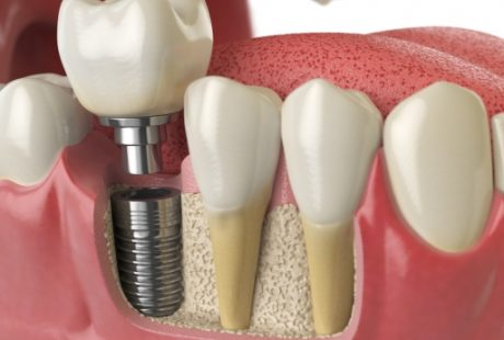 7 FAQ's About Dental Implants And Their Answers.