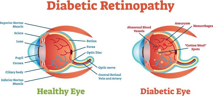 Diabetic Retinopathy … The Vision Thief!
