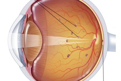 Top 5 Eye Floaters Causes