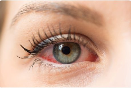 Eye Allergies !! Causes and Treatment