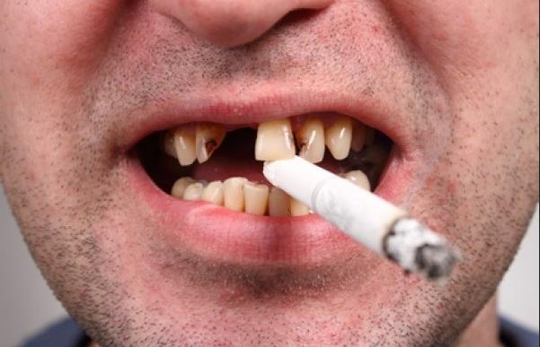 تعرف على اضرار التدخين على الاسنان