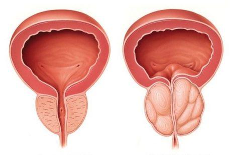 احتقان البروستاتا ماهي الاسباب والأعراض والعلاج
