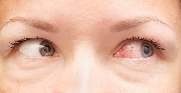 7 Pink Eye Causes