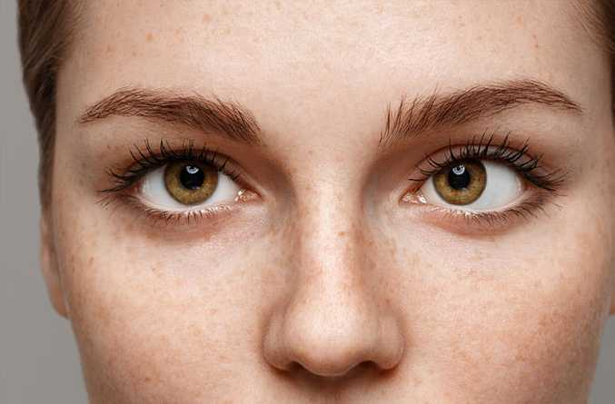 (7) FAQs About Strabismus.
