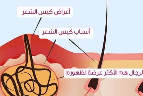 تعرف على اعراض الناسور العصعصي وطرق العلاج